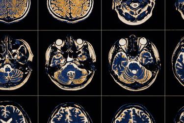 MRI_image